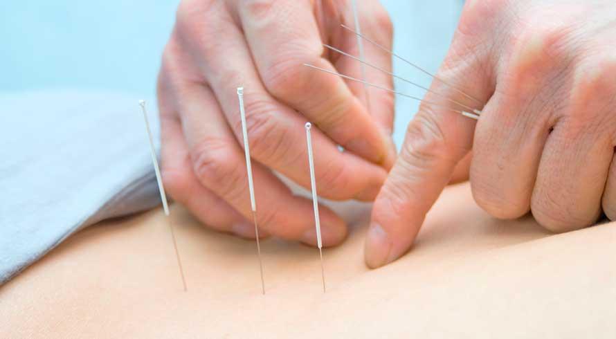 A acupuntura no tratamento pós Covid-19