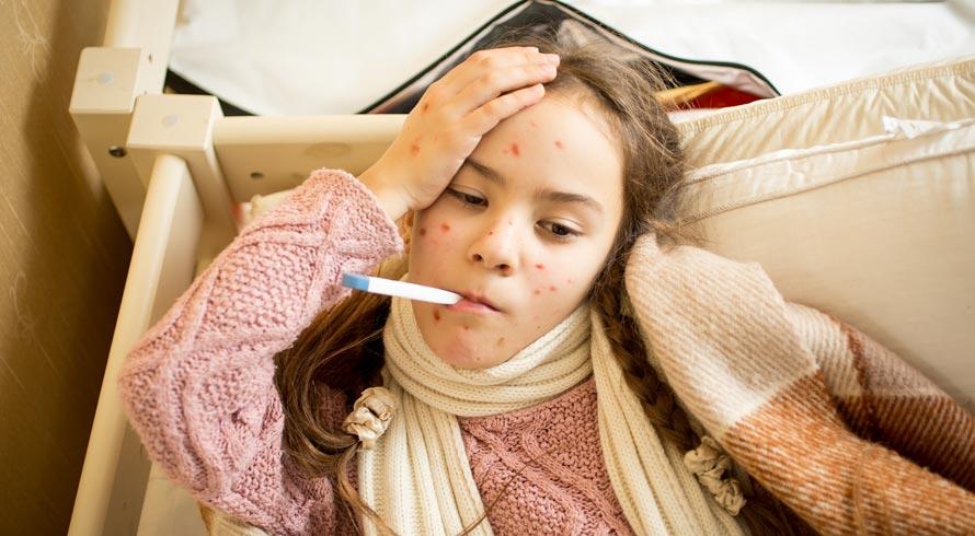Confira algumas respostas para perguntas sobre o sarampo