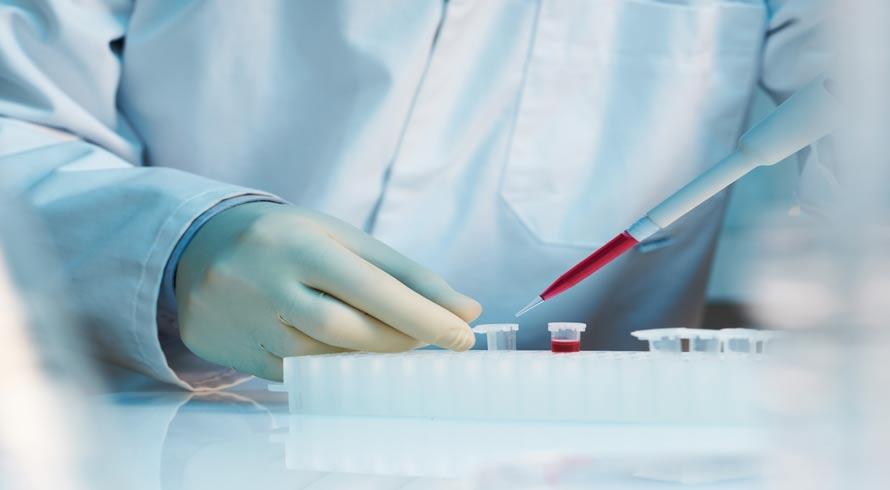 Preparado (a) para saber quando vai morrer? A Ciência já dispõe de exame de sangue que faz tal revelação