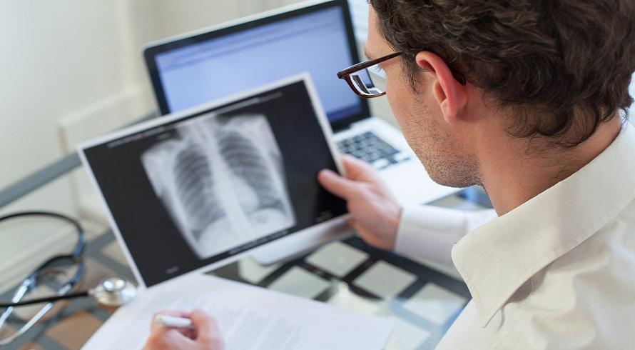 Saiba quais são as diferenças entre a pneumonia comum e a causada pela Covid-19