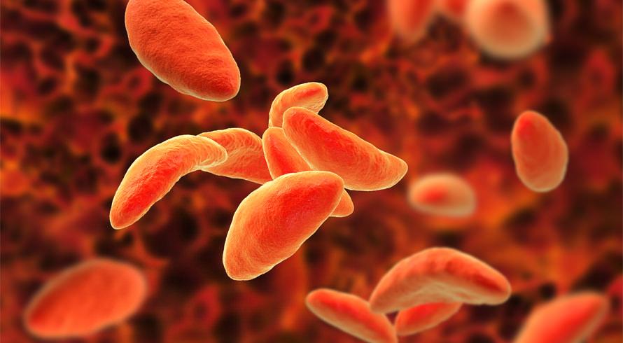 Toxoplasmose volta a preocupar autoridades de Saúde no Brasil. Surto foi registrado em Santa Maria (RS)