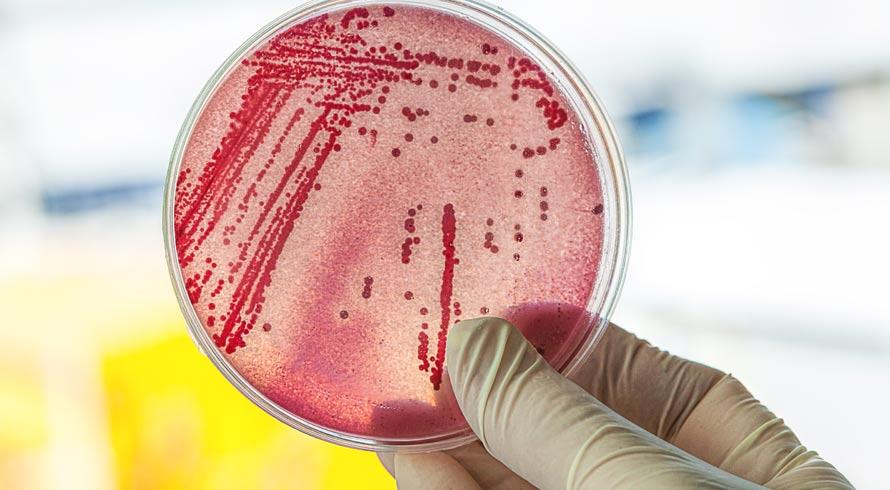 Universidade de Creta, na Grécia, pesquisa microrganismo que come plástico e pode ajudar a limpar os oceanos