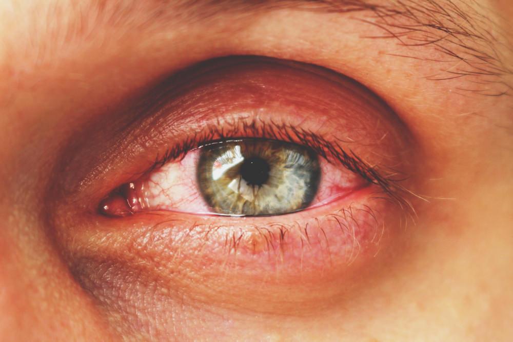 Conjuntivite: inflamação da membrana transparente e fina que reveste a esclera é frequente o ano todo. Higiene adequada evita o contágio