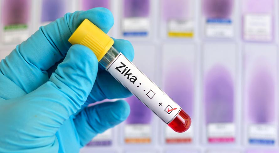 Pesquisadores brasileiros descobrem eficiência do zika vírus no combate ao câncer de próstata
