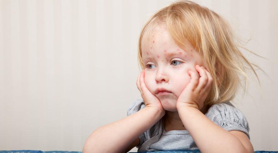Dados da OMS indicam que o sarampo está se espalhando pelo mundo